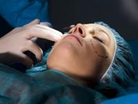 face-procedure1-200x150